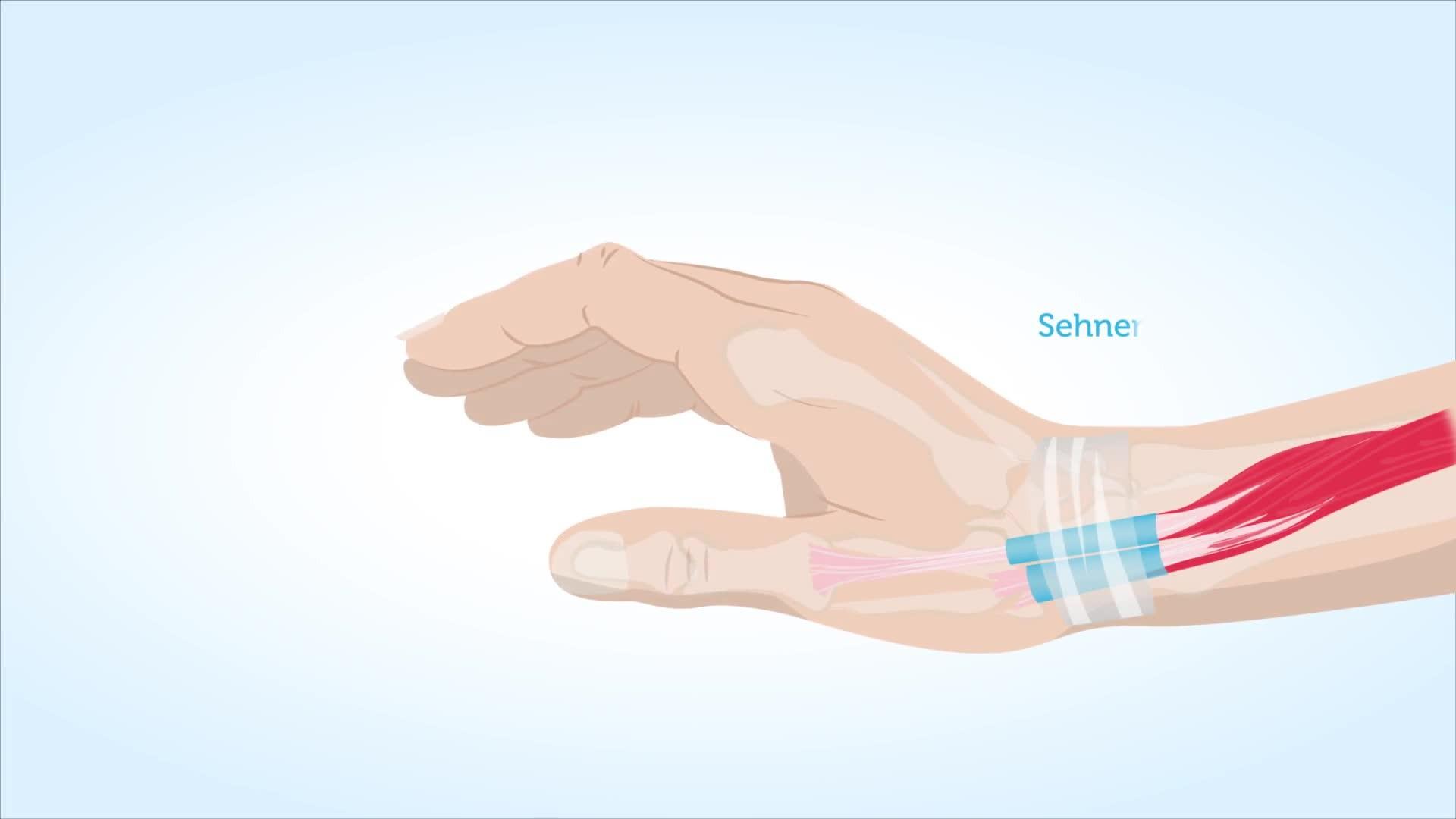 Handgelenk was gelenkschmerzen tun bei Gelenkschmerzen